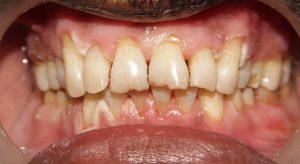 teeth whitening center in chennai, mugalivakkam