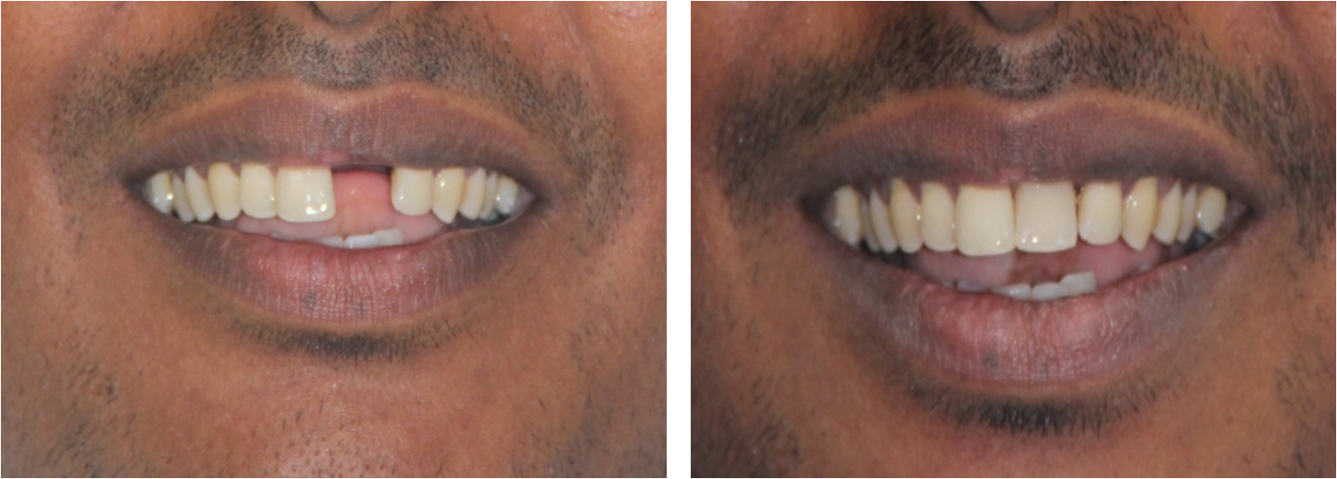 front tooth replacement