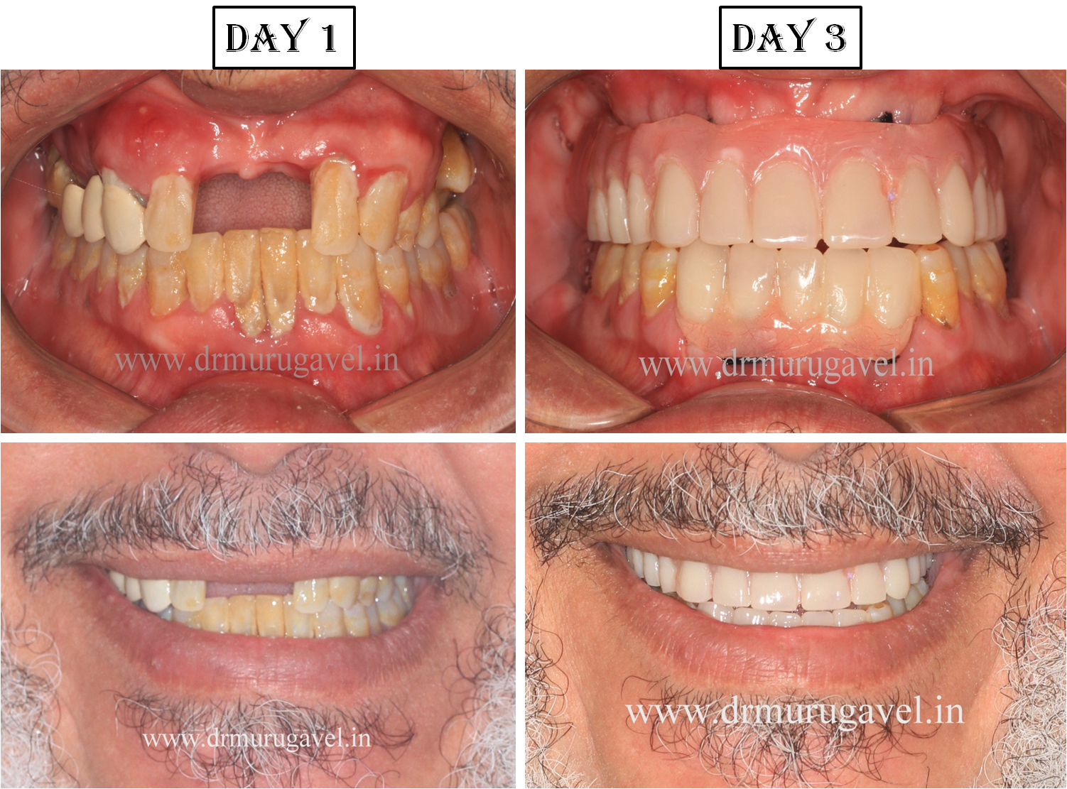 Immediate teeth replacement in chennai