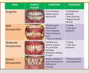 Treatment for gum disease in chennai, mugalivakkam