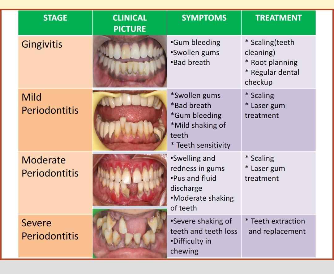 Treatment for gum disease in chennai, mugalivakkam