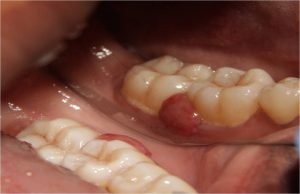 laser gum treatment in chennai