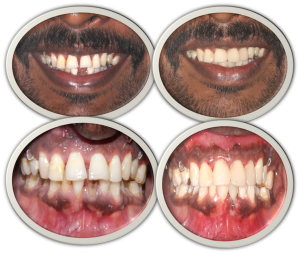 teeth gap filling treatment cost in India,Chennai