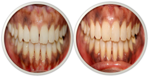 front teeth gap closure(midline diastema) treatment option in India,Chennai