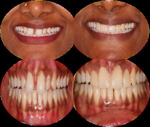 Teeth gap filling cost in India,Chennai