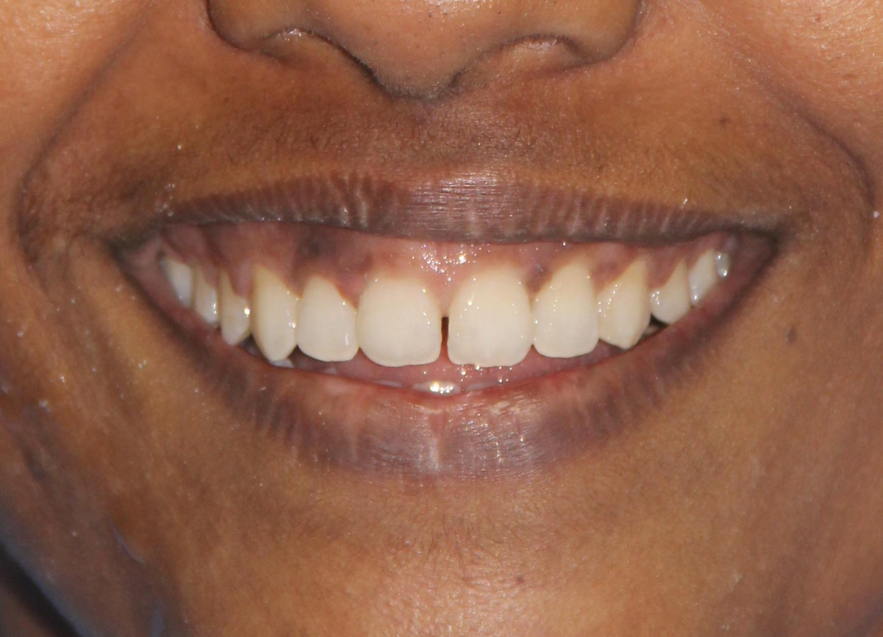 gummy smile treatment in Chennai