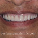 fixed teeth with dental implants in Chennai,India