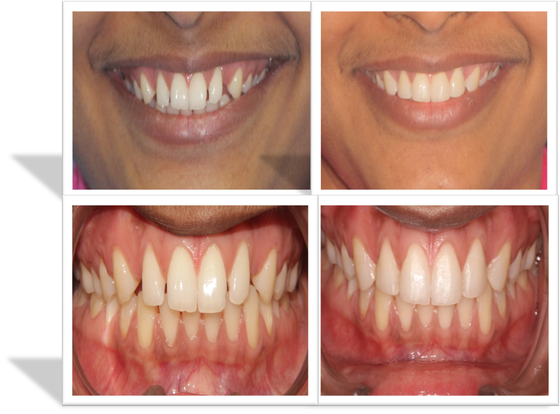 cost of digital smile designing in India,Chennai