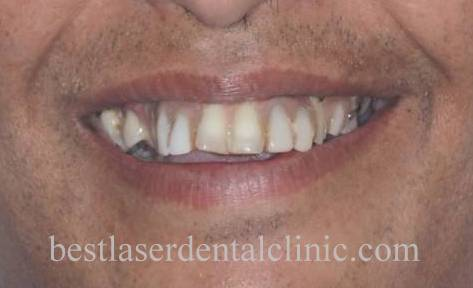 fixed teeth in 3 days in Chennai,India