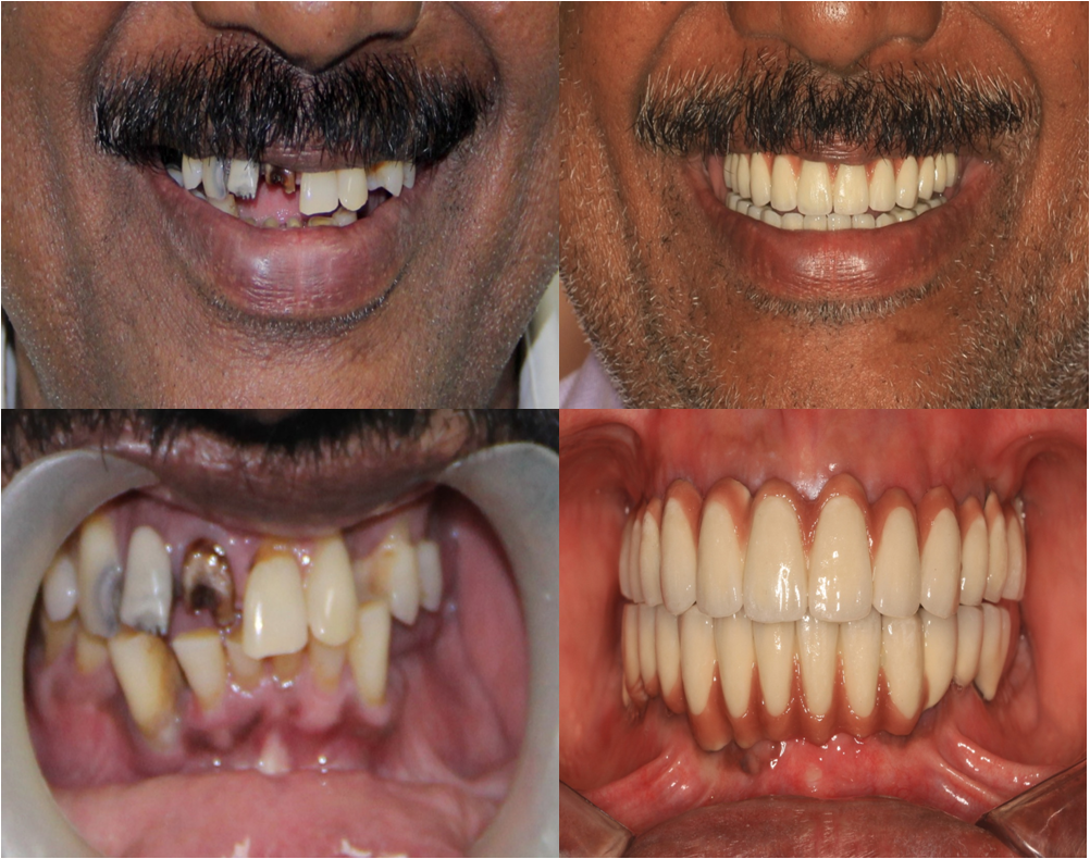 full mouth replacement with dental implants in India,Chennai