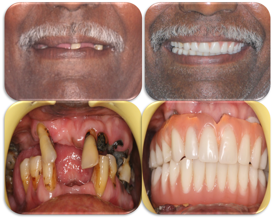 cost of dental implants in India, Chennai