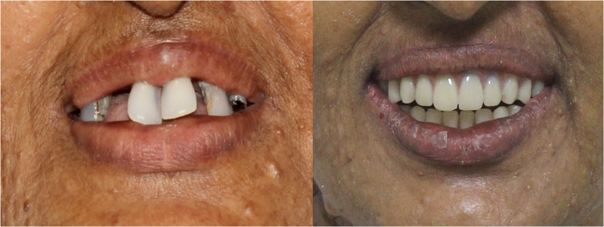 full mouth dental implants in India,Chennai