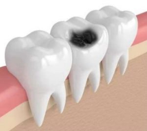 tooth decay treatment in chennai