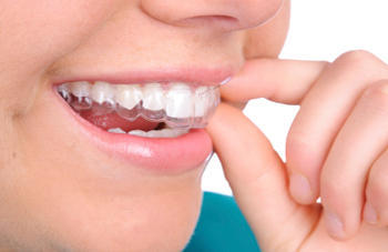 invisible braces treatment in Chenna