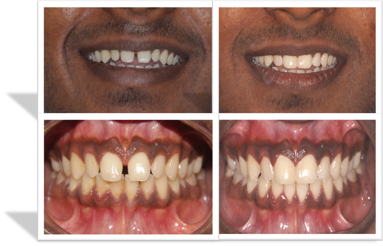 composite smile designing in India,Chennai