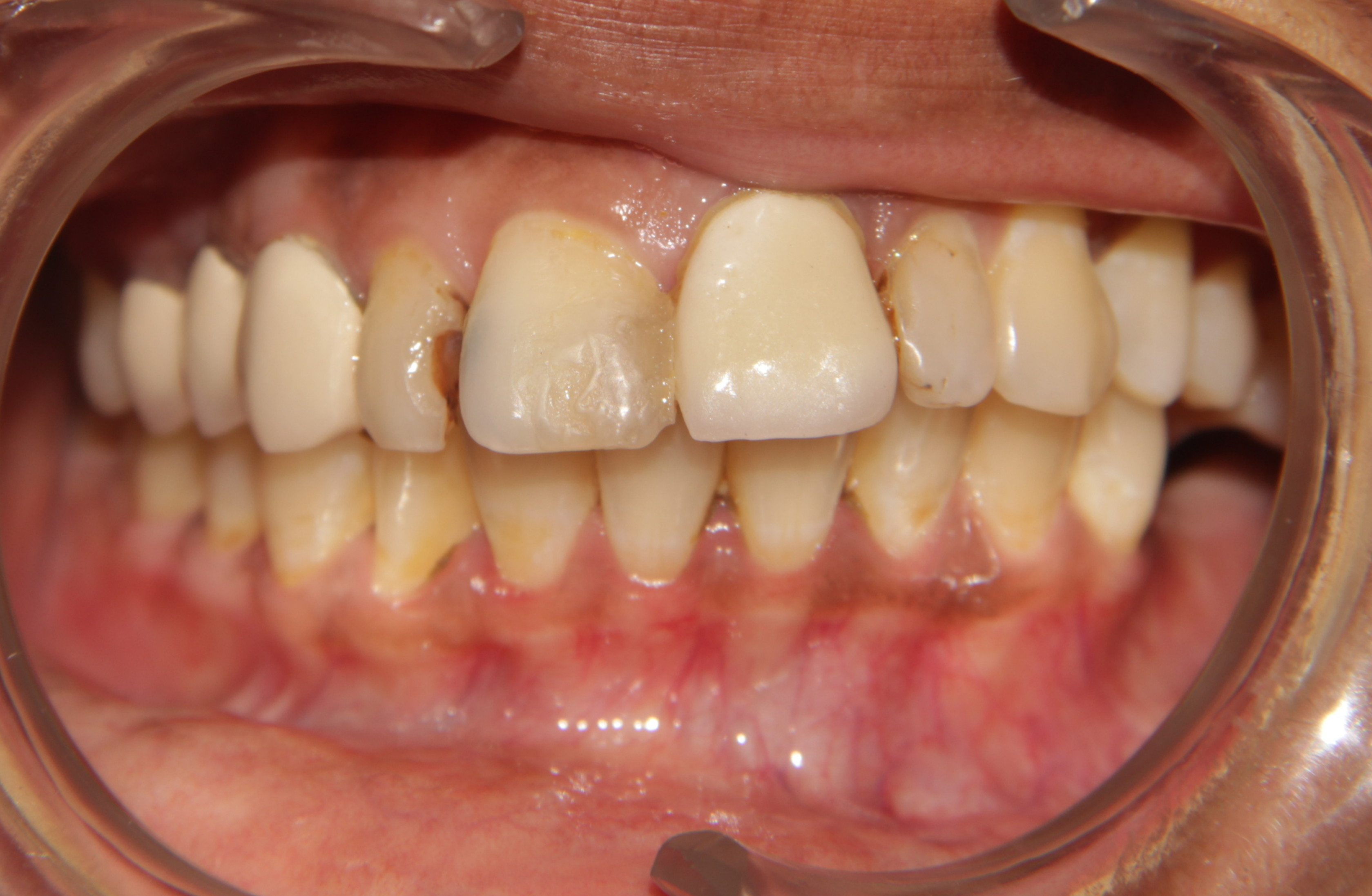 decay in front teeth
