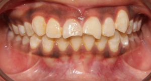 fractured front teeth
