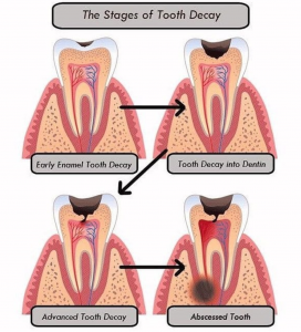 stages of dental caries