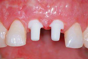 cost of zirconia dental implants in India,Chennai