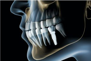zirconia dental implant in India,Chennai