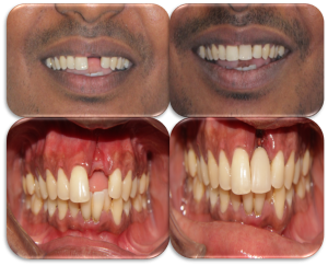 front teeth replacement cost in India,Chennai