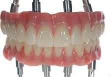 quad zygoma dental implants in India,Chennai
