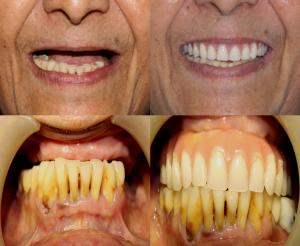 fixed teeth cost in India,Chennai