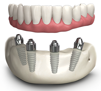 all on 4 dental implants for full mouth replacement in India,Chennai