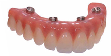 All on 4 dental implants in India,Chennai