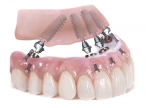 allonfour dental implants in India,Chennai