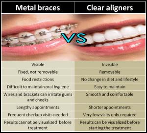 braces treatment in India, Chennai