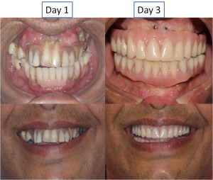 full mouth replacement with fixed teeth in India, Chennai