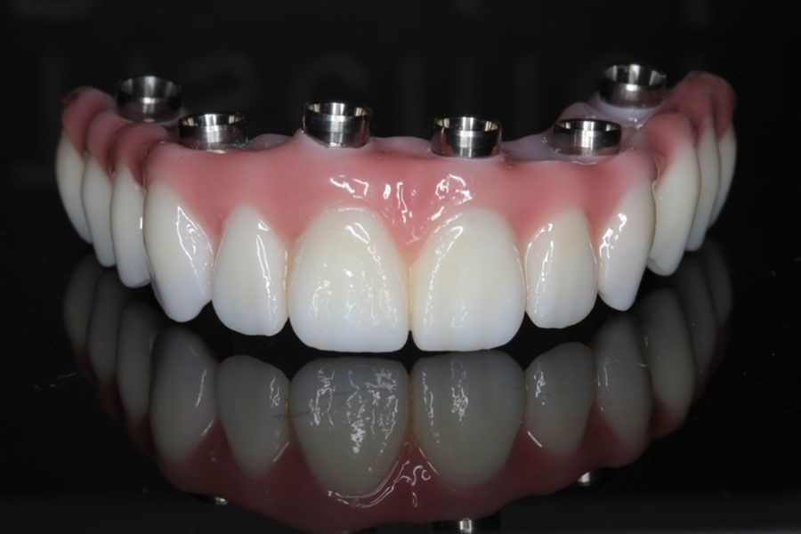 full teeth replacement with all on 6 dental implants in India, Chennai