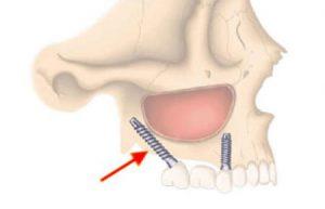 tuberopterygoid dental implants in India,Chennai