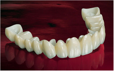 zirconia crowns and bridges in India,Chennai