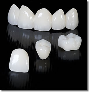 zirconia crown in india, chennai