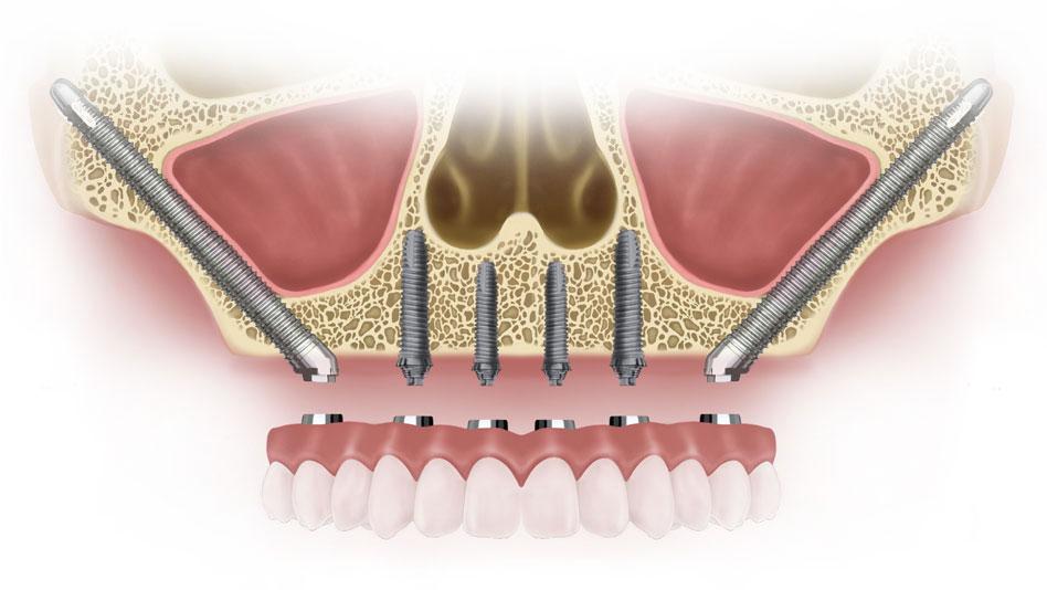zygoma implants chennai