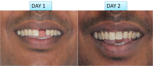 single tooth dental implant cost India