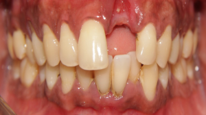 single tooth replacement cost in India