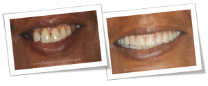 cost of full teeth replacement with dental implants in Chennai, India