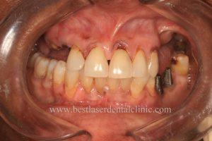 full teeth implant cost in chennai, India