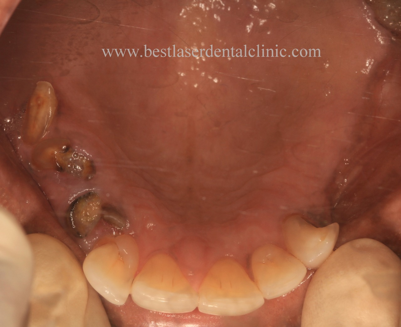 full teeth implant cost in Chennai, India