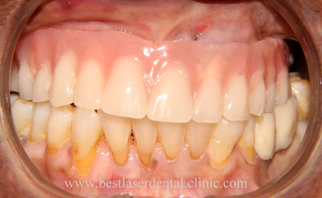 full teeth replacement with dental implants in India