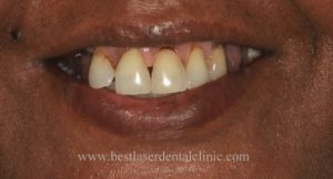 how to replace missing tooth in chennai, India