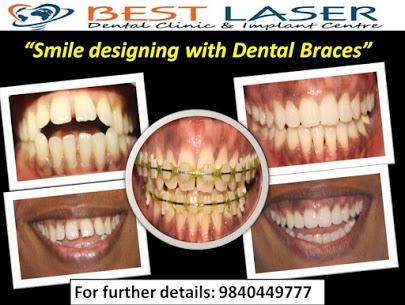 Cost of ceramic teeth braces in Chennai, India