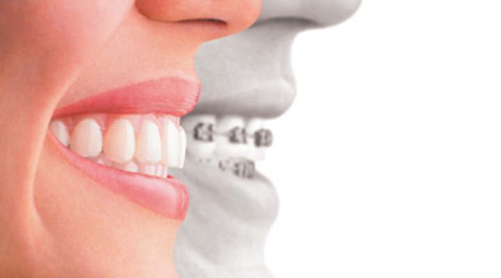 Best dental braces in Chennai